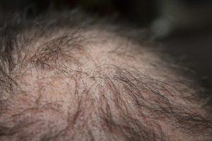 תהליך השתלת שיער
